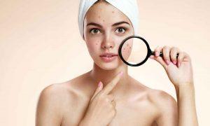 Cara merawat wajah, cara menghilangkan bekas jerawat, beauty golds