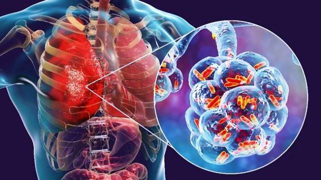 Infeksi Coronavirus ada di paru paru setiap orang yang positif corona
