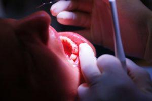 Penyebab gusi berdarah beberapa alasan kesehatan gusi ini